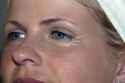Wie pigment- die Flecke behandelt